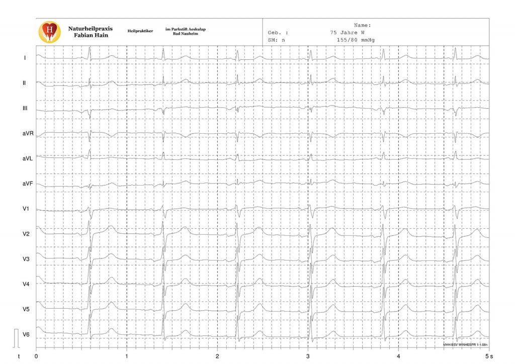 EKG Rohdaten