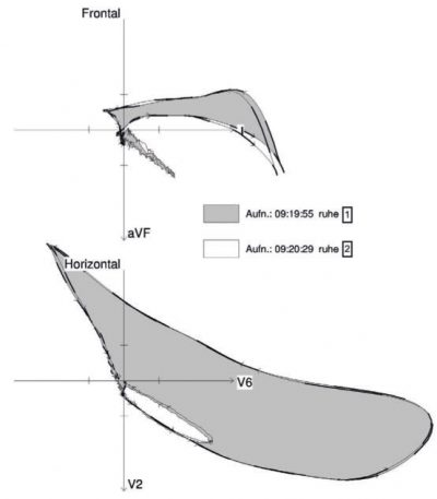 Abb. 3 Volumen-EKG ohne erhöhte Volumenbelastung bei Charlotte D.: Die Messung ohne Anheben der Beine zeigte keine Veränderung der Vektorschleifen.